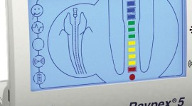 Endometr-RayPex5-Gabinet-Dentystyczny-Beauty-Dental-Lublin-575x270