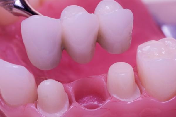 three-unit-dental-bridge-example